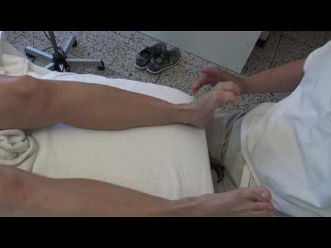 Detraleks bei der Varikose auf den Beinen