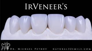 Индивидуальные керамические виниры IRVeneer's.