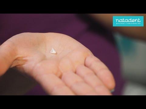 19. Детские коронки на молочные зубы - плюсы и минусы. Натадент