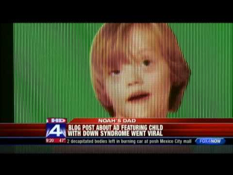 Ver vídeo Down Syndrome parents at Fox4