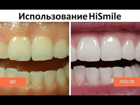 youtube HiSmile (ХайСмайл) - домашнее отбеливание зубов