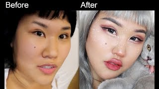 Makeup Artist From EUROPE's First Plastic Surgery In Korea Part 1