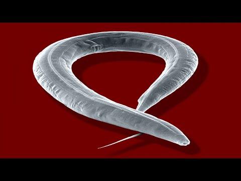 Lamblia paraziták tedavisi