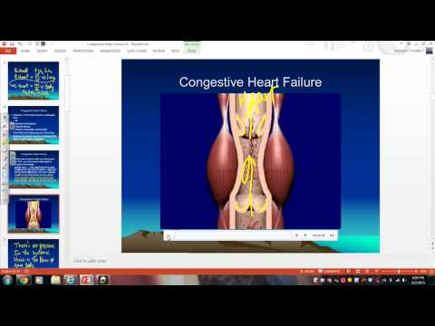 Hipertensionit portal në fëmijët