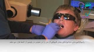 رادیوگرافی دندانپزشکی |  دندانپزشکی سیمادنت