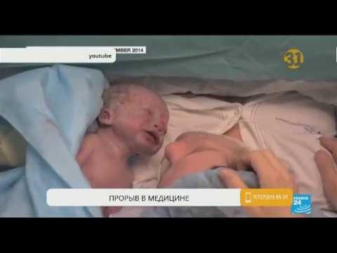 В Бразилии после пересадки матки от мертвого донора женщина родила здорового ребенка