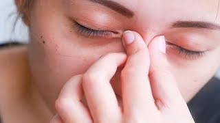 Home Remedies to Reduce Eye Swelling from Crying | Swollen eyes from crying | puffy eyes from crying