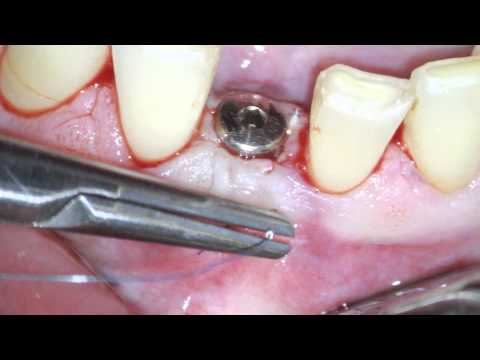 Implant uncovery and soft tissue augmentation