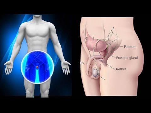 Strumpfhosen aus Prostatitis
