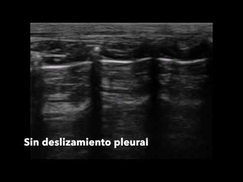 Prostatitis y la hinchazón de la cara