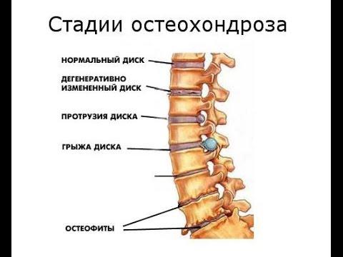 Методы лечения поясницы
