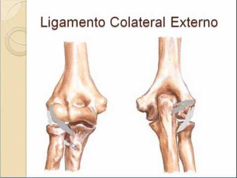 Tratar la artritis de la cadera