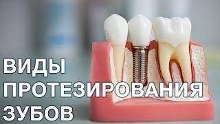 Протезирование зубов. Виды протезирования зубов. Микро протезирование.