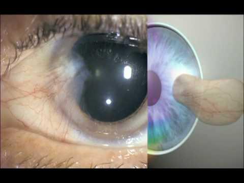 Der richtige UV-Schutz für Ihre Augen.