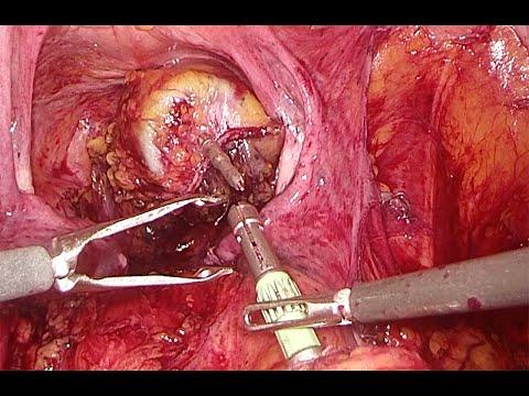 Laparoskopowa poszerzona hemikolektomia lewostronna (operacja Deloyersa)
