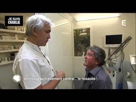 La noix de muscade et la varicosité les rappels