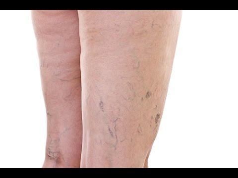 La varicosité le traitement rostov-sur-donou