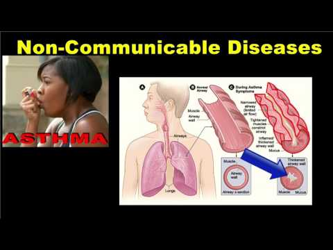 Fisioterapia ipertensione 2
