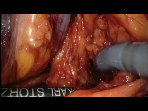 RS-RARP part 10 Pelvic Lymph Node Dissection