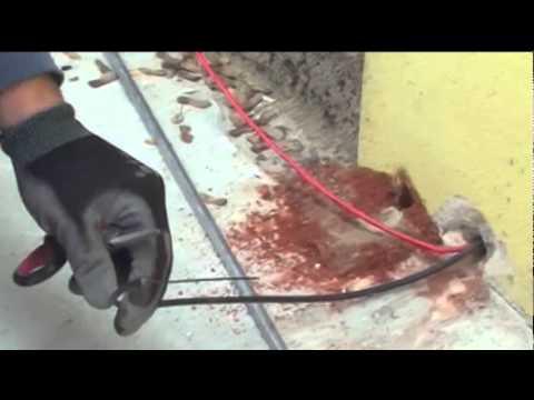 La cura per pulirsi di un organismo di parassiti