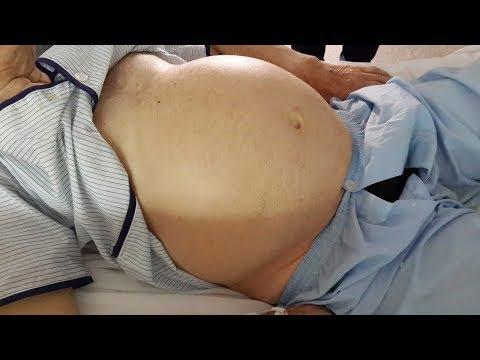 Ejercicio para hipertensos