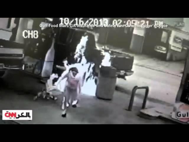 رجل يحرق زوجته عن غير قصد