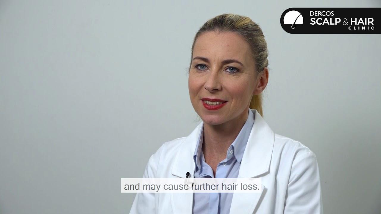Cómo tratar la alopecia postparto