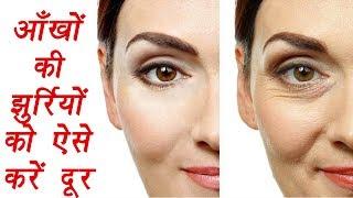 Eye wrinkle   How to remove wrinkle around eyes  आँखों की झुर्रियों को ऐसे करें दूर   Boldsky