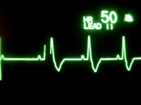 Hipertenzivna kriza dijagnoza algoritam