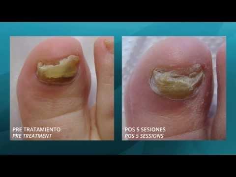 Y que curar la psoriasis sobre las uñas