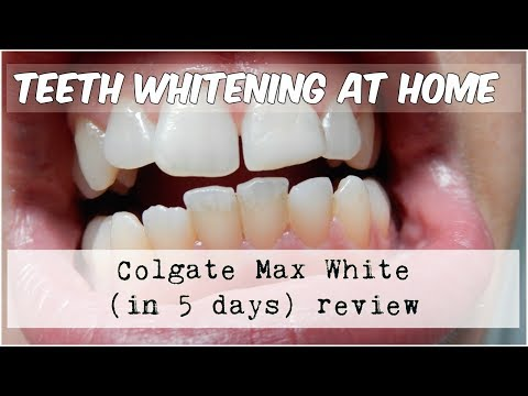 Teeth whitening | Colgate Max White review