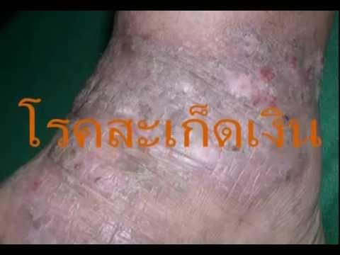 999 ครีม pianpin สำหรับการรักษาของ dermatoses, โรคผิวหนังกลาก