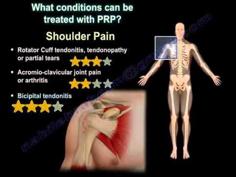 Farmaci per il dolore alle articolazioni delle mani