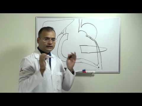 Pulso alto con hipertensión