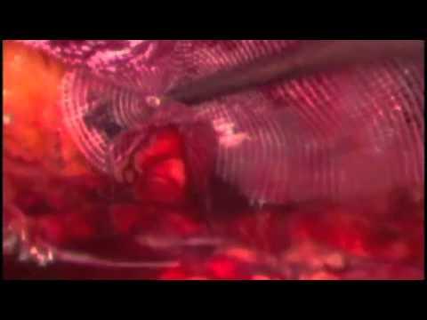 Bioabsorbable Hernia Plugs In Laparoscopic Hernia Repair