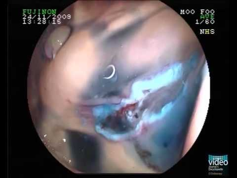 Rectal cancer hip pain