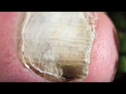 Das Bad von gribka der Nägel mit dem Peroxid