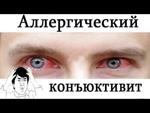 [ Dr. Ozz ] Аллергический конъюнктивит. Все что нужно знать. [ Помощь больному ]