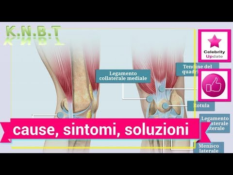 Fianco dentro thrombophlebitis