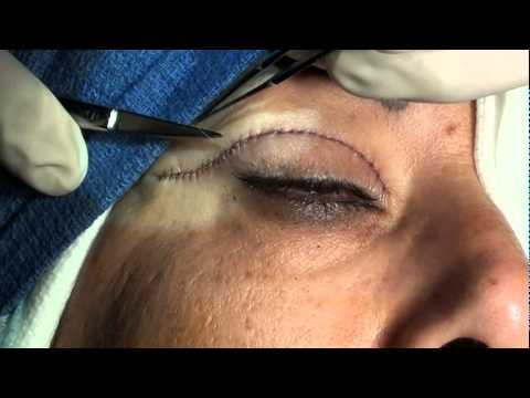 BLOODLESS Upper & Lower Eyelid Plastic Surgery (Blepharoplasty) W/ Only Local Anesthesia Dr. Soroudi