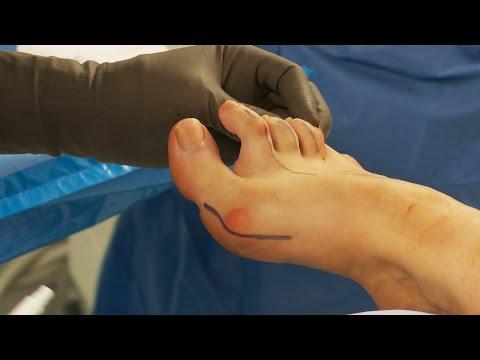 ความผิดปกติของข้อต่อในยิมนาสติกเท้า
