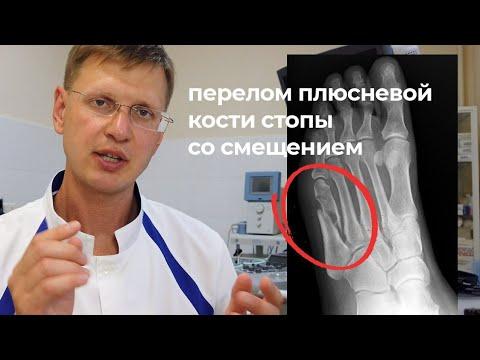 Как лечить перелом плюсневой кости стопы со смешением без операции. Код МКБ S92.3