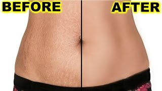 How To Prevent & Remove Stretch Marks at Home | ShrutiArjunAnand