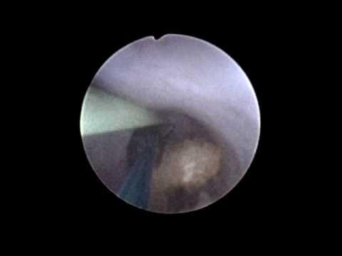 Loperazione si estende in prostata