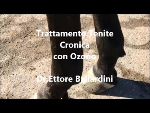 Caviglia Codice frattura ICD