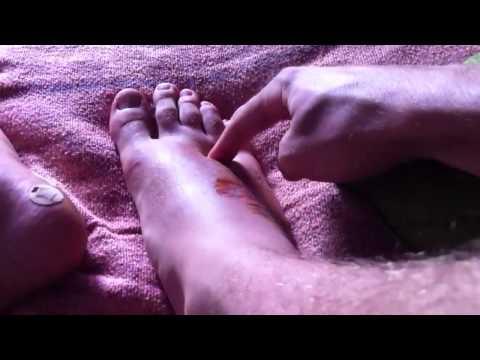 Attività sessuale nel trattamento della prostatite