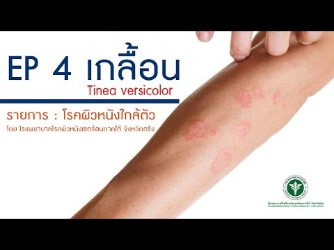 Solkoseril จาก neurodermatitis
