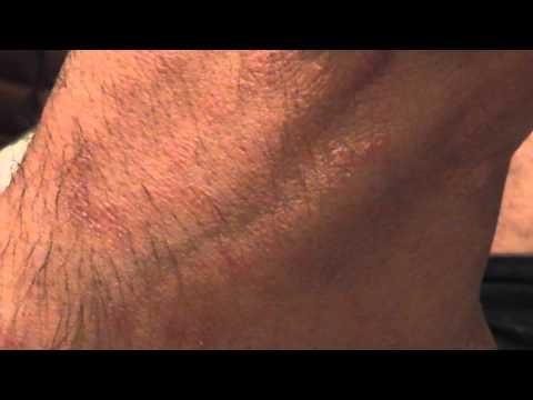 Die Behandlungen von der Schuppenflechte das Pech