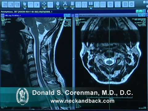How to Read a MRI of the Normal Cervical Spine