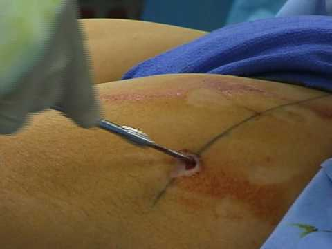 Pinning of Slipped Capital Femoral Epiphysis (SCFE)
